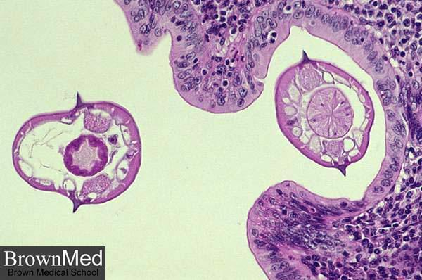 enterobius vermicularis petesejtek a székletben