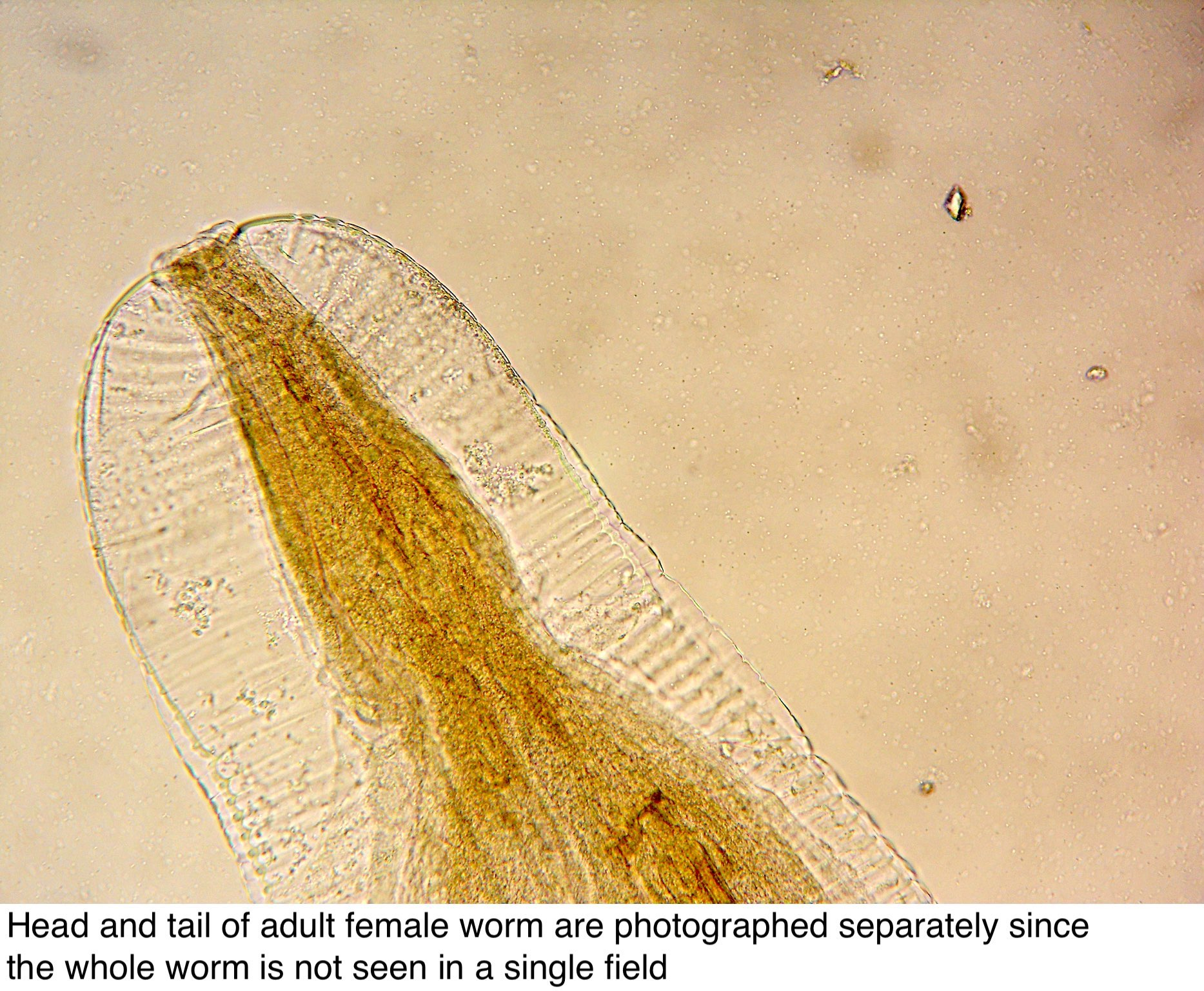 enterobius vermicularis vagy oxyure)