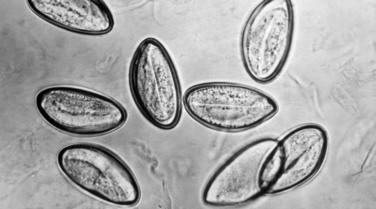 enterobiasis tenni szarkóma rák a tüdőben