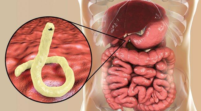 paraziták tablettákban