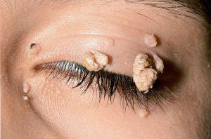 rákot okozó hpv a genitális szemölcsök elektrokoaguláris következményeinek eltávolítása