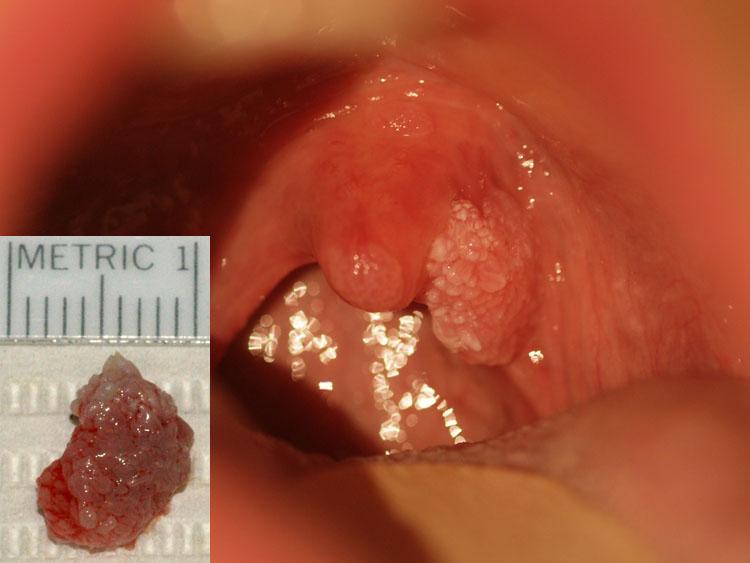 hpv na uvula