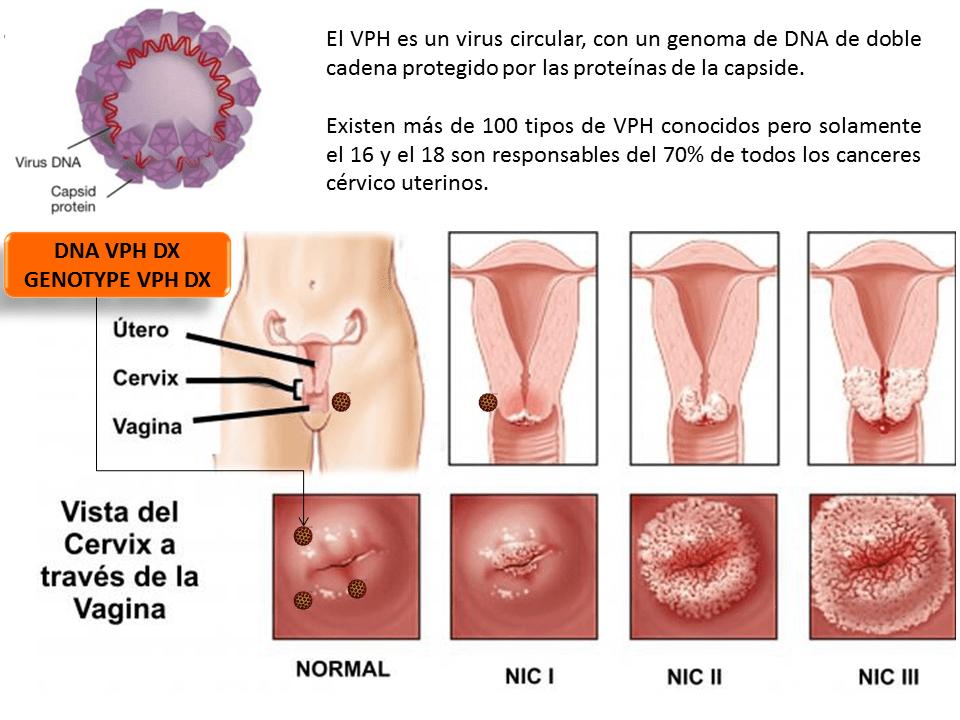 hpv vírus tipp 16 18