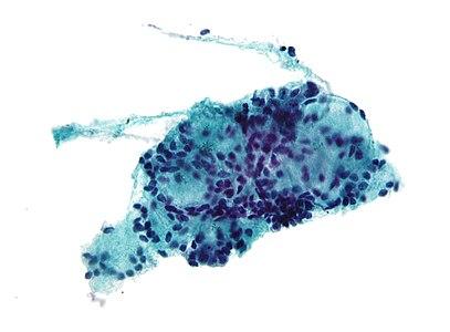 neuroendokrin rák medscape)