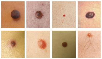 hpv papilloma vírus hibrid befogása intraductalis papilloma po polsku