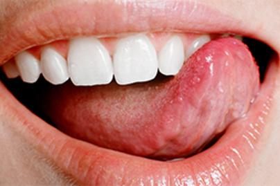 condyloma a száj jeleiben