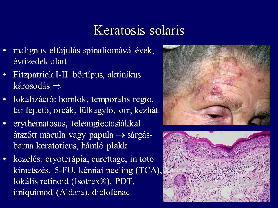 papillómák és hyperkeratosis gyöngy és condyloma