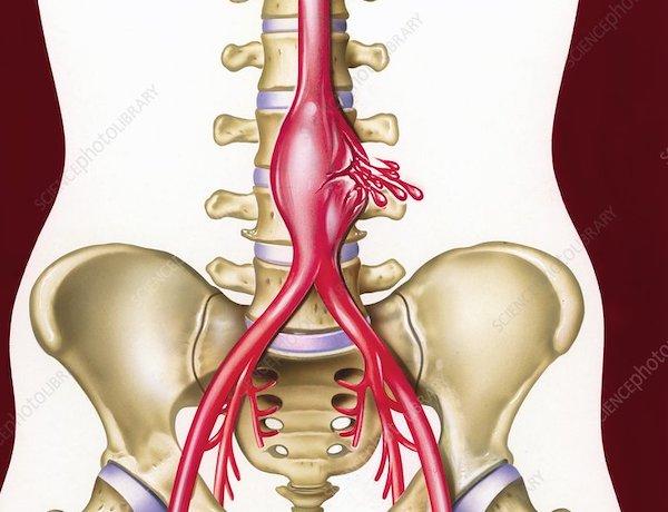 rák és hasi aorta aneurizma örökletes rák