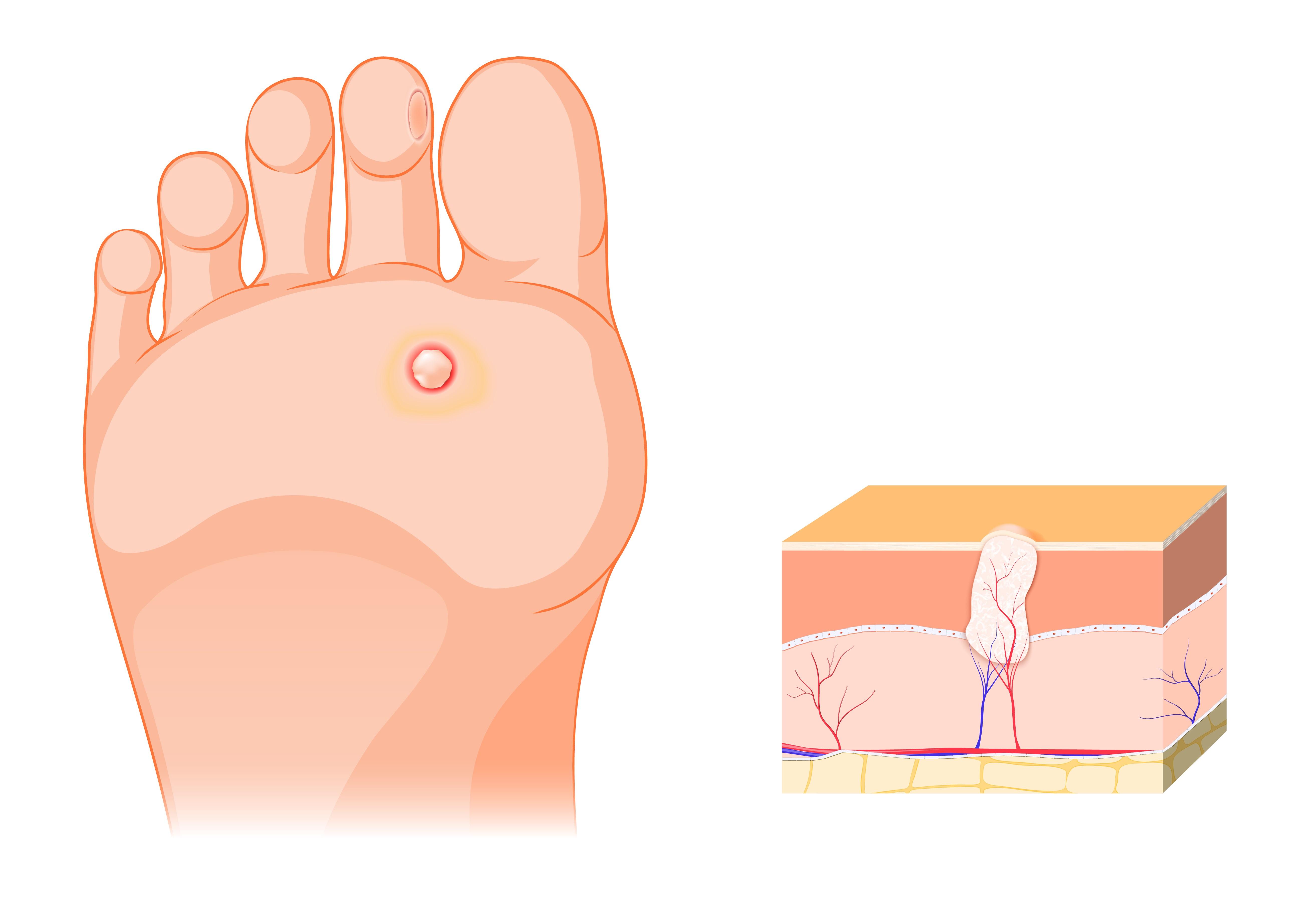 A condyloma acuminatum tünetei, kezelése és megelőzése, Szemölcsök a végbélben